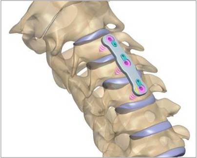 Anterior Cervical Fixation Devices - Global Market Outlook (2016-2022)