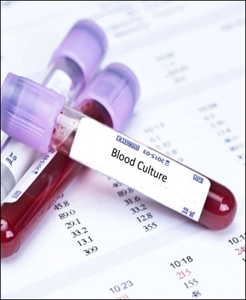 Blood Culture Test - Global Market Outlook (2017-2023)
