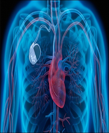 Cardiac Pacemakers - Global Market Outlook (2017-2023)