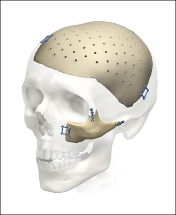 Cranial and Facial Implants - Global Market Outlook (2016-2022)