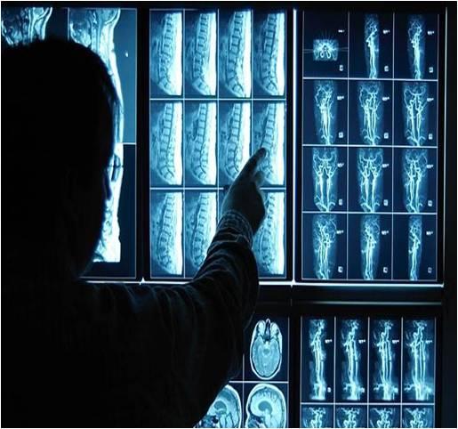 Diagnostic Imaging - Global Market Outlook (2016-2022)