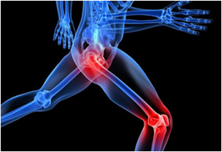 Hip and Knee Orthopedic Surgical Implants - Global Market Outlook (2015-2022)