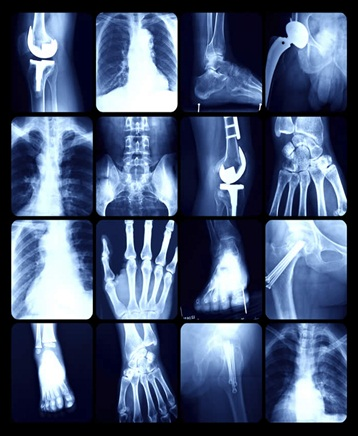 Medical Imaging - Global Market Outlook (2016-2022)