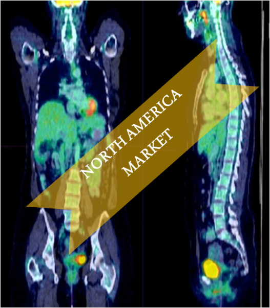 North American Nuclear Medicine Market Outlook (2014-2022)
