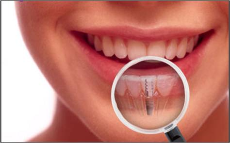 Non-Surgical Bio-Implants - Global Market Outlook (2015-2022)