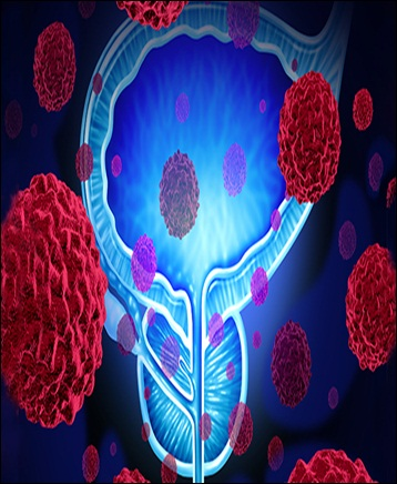 Prostate Cancer Therapeutics - Global Market Outlook (2017-2023)