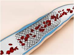 Stents - Global Market Outlook (2015-2022)