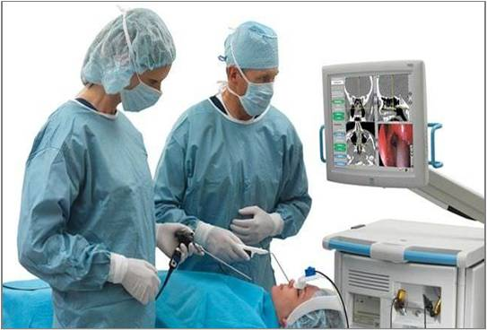 Surgical Navigation Systems - Global Market Outlook (2016-2022)