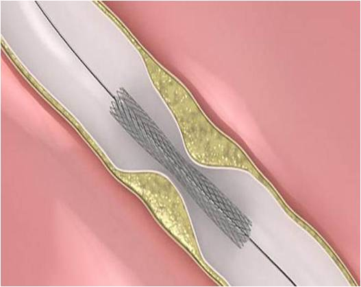 Vascular Stents - Global Market Outlook (2015-2022)
