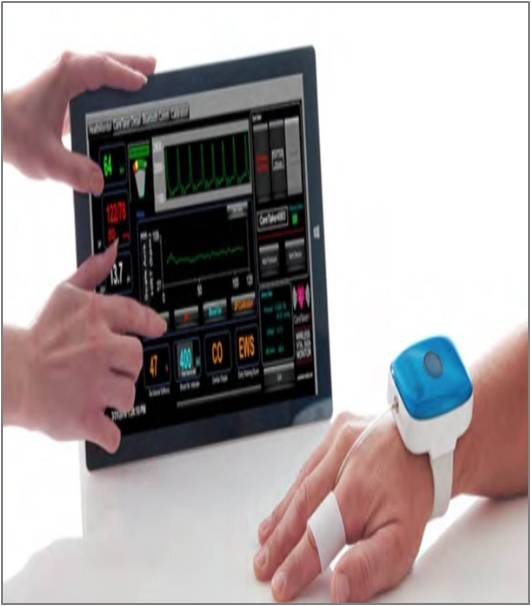 Wireless Patient Monitoring - Global Market Outlook (2017-2023)