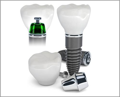 Bio-implants Market Outlook - Global Trends, Forecast, and Opportunity Assessment (2014-2022)