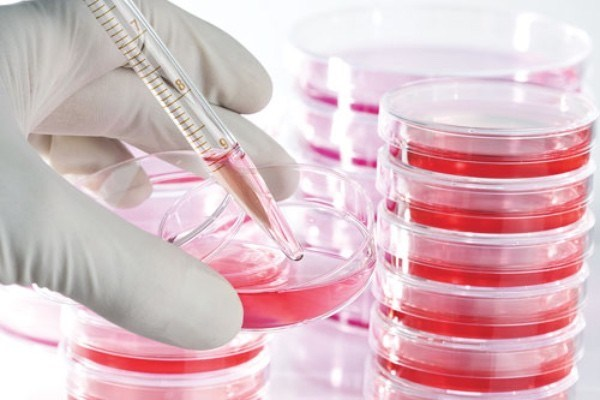 Cell Culture - Global Market Outlook (2017-2026)