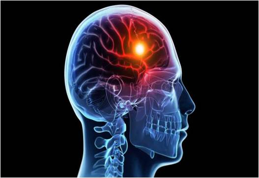 Global Stroke Diagnostics and Therapeutics Market Outlook (2014-2022)